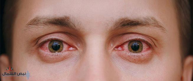 """خبراء يكشفون عن 3 علامات بالعين قد تشير إلى الإصابة بـ""""كورونا"""""""